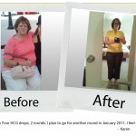 your-hcg-before-after_karen